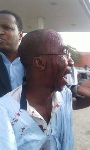 Mauritanie : plusieurs blessés dans des manifestations contre les modifications constitutionnelles