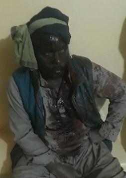 Mauritanie : Des féodaux Soninké malmènent des insurgés contre l'esclavage
