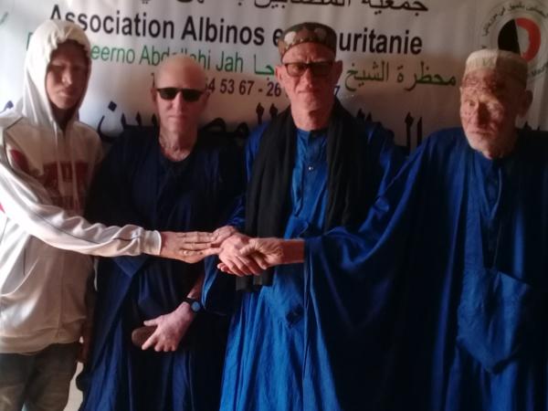 Journée internationale de sensibilisation : le cri du cœur des albinos mauritaniens