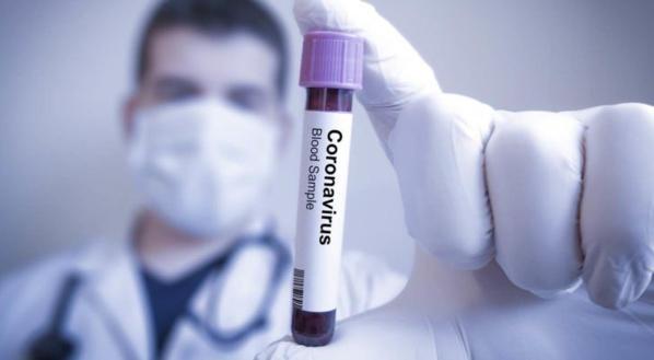Coronavirus: Test désormais systématique pour les confinés