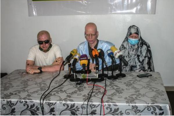 Le président de l'organisation de soutien et d'intégration des albinos : « Nous avons besoin d'une assurance maladie »