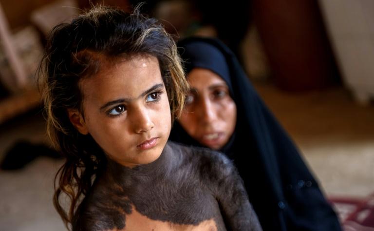 Dans un village d'Irak, une fillette mise au ban à cause d'une maladie congénitale