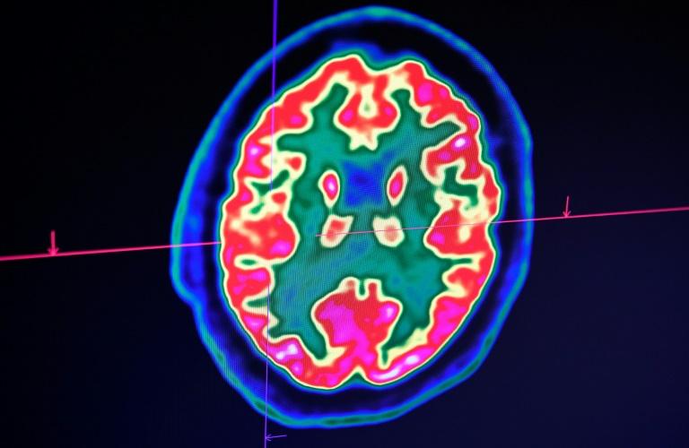 Le coronavirus semble aussi affecter le cerveau