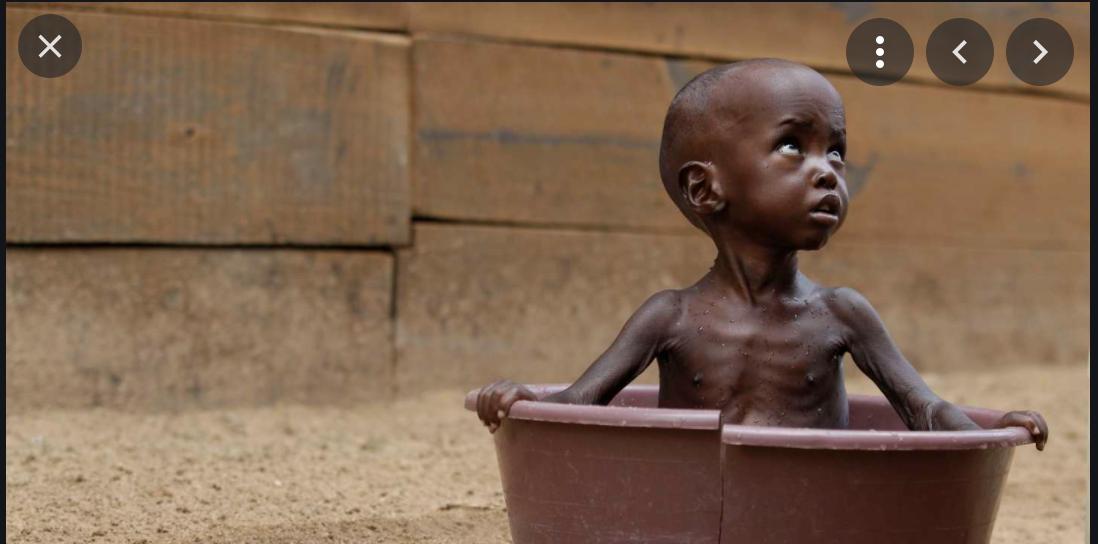 Mauritanie : 912 millions d'ouguiyas pour lutter contre la malnutrition